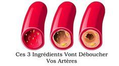 Si vous avez souffert d'artères coronaires bloquées, il y a trois ingrédients efficaces qui peuvent atténuer, voire éliminer, le problème d'artères bloquées et enlever la graisse de votre sang aussi. Les artères ducorps humain sont en charge du transport des nutriments et de l'oxygène vers le cœur et d'autres organes majeurs du corps. Afin de …