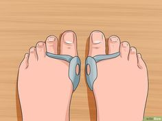 Imagen titulada Get Rid of Bunions Step 5