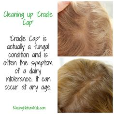Cleaning Up 'cradle Cap'