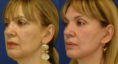 Face Toning Aerobics For Erasing Wrinkles On The Face And Neck