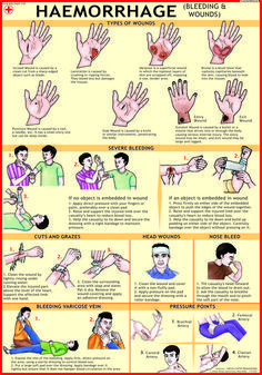 Haemorrhage (Bleeding & Wounds)
