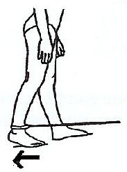 Advanced standing exercises after hip replacement surgery