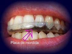 O bruxismo é o ato inconsciente de apertar ou ranger os dentes, principalmente durante a noite. Veja os sintomas e como tratar esse problema.