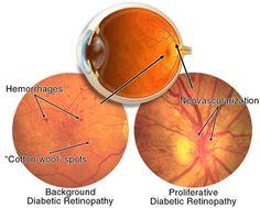 Las Vegas Diabetic Eye Problems - Brimhall Eye Center
