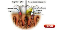 Здоровые зубы залогкрасивой улыбки и хорошего настроения. Человек, встречающий вас красивой улыбкой всегда располагает к общению. Предлагаем вам простой рецепт, который поможет вам сохранить зубы и поможет легко справиться с такой проблемой, как зубной камень. Проявляйте заботу о себе, чаще улыбайтесь и БУДЕТЕ ЗДОРОВЫ! Коричневый или желтый налет на зубах можно удалить дома! Зубной камень …