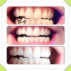 natural teeth whitener. Results after only 2 times! Only do this once a week until you get your desired white for your teeth. Then only once a month to maintain. 1tsp hydrogen peroxide, 1tsp baking soda, 1/2 tsp water, dab of toothpaste. Mix and brush for strictly 2 minutes max then rinse with water. You'll see results immediately. Be sure to take before and after photos!! FYI, my gums are very sensitive so I do top first then rinse and then do bottom and rinse. Good luck!!