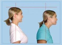 """If you work on a computer most of the day, chances are that you have """"forward head"""" which means your ear does not line up properly over your shoulder. Forward head can lead to neck, shoulder & upper back pain.  Strengthening your deep neck flexors can help bring your head into proper alignment. Here's a fun & simple exercise you can do anywhere (even in the car) to strengthen your neck flexors."""