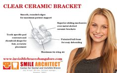 Dental braces are placed on the teeth to achieve straight. Smile Architect provides all types of dental braces treatment at affordable cost in India Dental Braces, Teeth Braces, Ceramic Braces, Invisible Braces, Teeth Straightening, Orthodontics, Ceramics, Popular, Ceramica