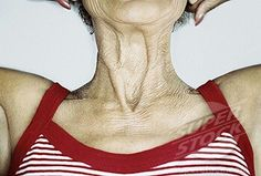 Mature neckline