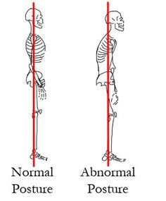 The Importance of Posture | Dr. Ben's Health Blog, Brown's Chiropractic Office