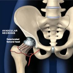 AVASCULAR NECROSIS (AVN) OF THE HIP This condition occurs when a bone's normal blood supply is disrupted. The affected bone cells die, and the dead bone weakens and may begin to fracture and collapse, leading to arthritis. It most commonly affects the head of the femur, but can also affect other bones in the body. If you are experiencing hip pain and would like more information on AVN, please call us at 248-650-2400 or visit our website, www.dl-ortho.com.