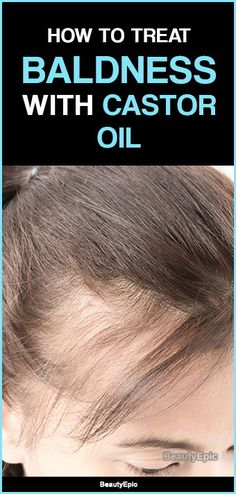 How to Treat Baldness with Castor Oil? Baldness is a typical health conditions which causes excessive loss of hair from scalp. It is also known alopecia and observed by people of all ages. Here are some methods of using castor oil for baldness. Castor Oil Hair Loss, Castor Oil For Hair Growth, Oil For Hair Loss, Vitamins For Hair Growth, Hair Oil, Hair Growth Shampoo, Hair Growth Oil, Castor Oil Shampoo, Hair Loss Treatment