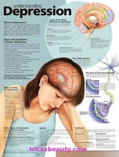 Understanding Depression anatomy poster mental health poster defines three main types of depression and role of neurotransmitters. What Is Depression, Causes Of Depression, Depression Treatment, Depression Remedies, Depression Support, Traditional Chinese Medicine, Health Fitness, Health Tips, Psychology