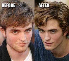 Natural Skin Care  ....  Chatter Busy: Robert Pattinson Nose Job