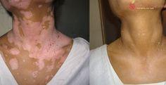 Remove the white patches on your skin (VITILIGO) naturally!