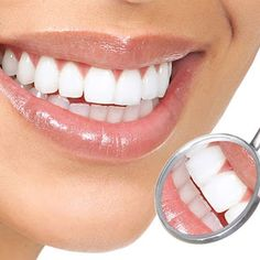 Tooth Whitening is Cosmetic procedure to whiten teeth, remove stains and get bright smile. Schedule an appointment at Woodshore Family Dentistry for professional teeth whitening in Clute TX. Call Now at Teeth Whitening Procedure, Home Teeth Whitening Kit, Teeth Whitening Remedies, Natural Teeth Whitening, Blend A Med, Get Whiter Teeth, Tooth Sensitivity, Dental Services, Essential Oils