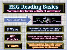 Corresponding Cardiac Activity of Waveforms