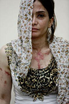 Canadauence TV: Mulher grávida atacada com ácido na Síria, Andi de...