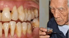He cured himself of periodontal disease: Now he shares his experience and recipe with us! Periodontal disease is a disease of the teeth which damages . Broccoli Nutrition, Nutrition Chart, Gum Disease Cure, Gum Disease Treatment, Gum Health, Dental Health, Causes Of Bad Breath, Dental, Natural Remedies