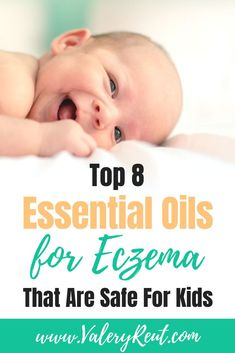 Top 8 Essential Oils for Eczema That Are Safe for Kids : Not all essential oils are safe for our little ones. Check out these top 8 essential oils for eczema that are safe for kids. Excema Essential Oils, Essential Oils For Babies, Best Essential Oils, Essential Oil Uses, Young Living Essential Oils, Toddler Eczema, Eczema In Toddlers, Eczema Baby, Eczema Remedies