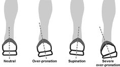 Types of pronation.  In article about How To Choose Running Shoes.  A buying guide to running shoes.  Very informative.  Source.  REI.