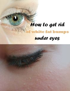 How to get rid of white fat bumps under eyes (Milia) - RealBeautyTips.org