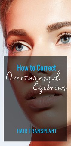 How to correct overtweezed eyebrows! Hair Transplant