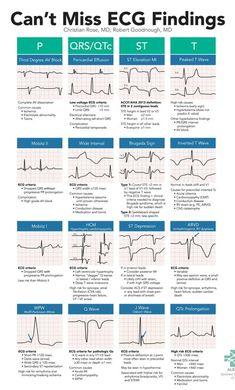 Can't Miss ECG Findings Cards for the Emergency Medicine Provider – StudyPK – Trend Medical Cardiac Nursing, Nursing Mnemonics, Nursing Degree, Ekg Interpretation, Nursing School Notes, Nursing Schools, Medical School, Rn School, Critical Care Nursing