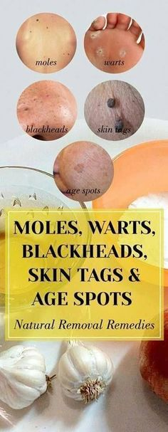 How to Get rid of Warts Naturally #WartsSkinDisease #wartsonhands #WhatIsTheBestWayToRemoveWarts Foot Warts, Warts On Hands, Warts On Face, Black Spots On Face, Brown Spots On Skin, Skin Spots, Dark Spots, Get Rid Of Warts, Remove Warts