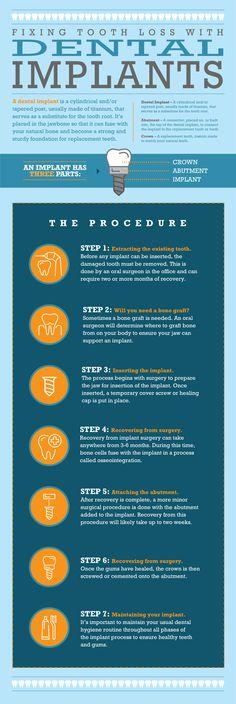 Dental Implants Explained [Infographic] -