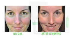 Video showing REAL before and after pictures of Rodan & Fields skincare regimens.  Be amazed!!!  :)  www.mrus.myrandf.com