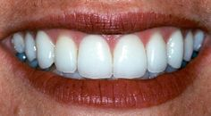 View and rate Dr. Abeles' work on Rankipedia now. shape and color :  http://www.rankipedia.com/dentist/dentistprofile/Dr-Frederick-Abeles-DDS-Atlanta/30339/id/28333
