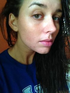 my coconut oil acne 30 day journey. I have always suffered from mild acne since my teens but all the How To Apply Blusher, Acne Oil, Coconut Oil For Acne, Natural Exfoliant, How To Clean Makeup Brushes, Best Acne Treatment, Hormonal Acne, Acne Remedies