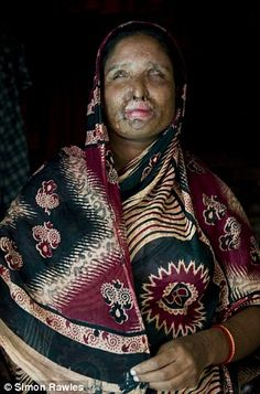 Woman forced to remarry the husband who threw acid in her face after she divorced him for being unfaithful.