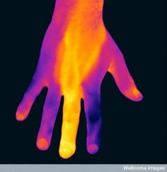 Thermography of a hand with an infected finger/Main avec un doigt infecté  vue thermographie. http://wellcomeimages.org/indexplus/page/Prices.html Copyrighted work available under Creative Commons by-nc-nd 4.0 by Wellcome