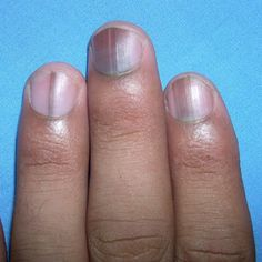 What Are The Effects Of Nutrient Deficiencies On Nails And How To Rectify Them?