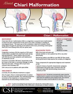 Chiari Malformation One Page Information Sheet