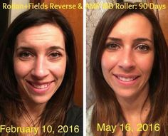 These are my personal results (Danielle Yemma) Alright skeptics of those aren't real people or real results... OMG! Here are MY personal results with R+F. I can't believe my before... UGH!! I used the Reverse regimen for 90 days with the AMP MD Roller! I just started the Redefine regimen a week ago. I thought I better take a picture today! I can't believe it!! Those brown spots are gone! My forehead wrinkles are practically gone!!