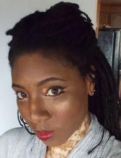 Vitiligo Repigmentation Success Story - Aine Anderson