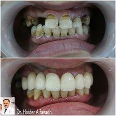 Emax Veneers with Zirconium Bridge by Dr. Haider Alfayadh, Cosmetic and Implantology Specialist  #qatar #ksa #kuwait #uae #emirates #dubai #oman #lebanon #germany #jordan #usa #bahrain #bahrainclinic #bahraindental #dental #dentalclinic #specialists #dentist #smile #cosmetic #emax #veneer #implantologist #dentalclinicbahrain #visityourdentist #dentistinbahrain #drhaideralfayadh #happysmiles #transformedsmile #happypatient