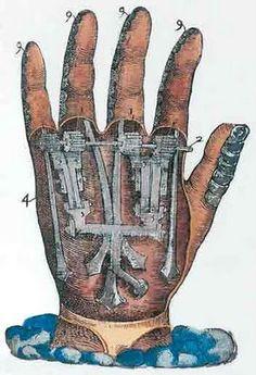 "Diseño de mano artificial para amputaciones de Ambroise Paré ""Instrumenta chyrurgiae et icones anathomicae"" (Paris, 1564)"