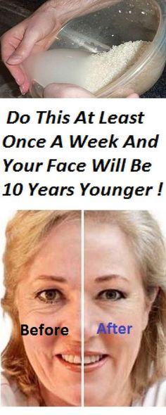 Do This At Least Once A Week And Your Face Will Be 10 Years Younger! #acnemapchest