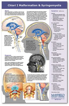 Chiari Specialists ::: Mayfield Chiari Center i can confirm! My surgeon is amazing and saved my life!