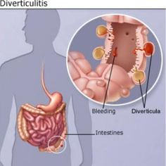 Natural Cure For Diverticulitis
