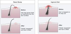 As a woman I can say with moderate certainty that the places we tend to get ingrown hairs, are …