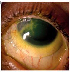 Microbiota normal de la superficie Ocular    Un uso extendido durante 1 mes de LC de hidrogel de silicona se asoció con un incremento en la conjuntiva de estafilococos coagulasa negativa y difteroides. Otros estudios no mostraron cambios significativos en la microbiota conjuntival tras uso de estas LC hasta 2 meses.