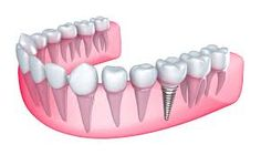 There are now a wide variety of dental implant placement procedures that vary in duration and materials.  Any implant procedure is preceded by a detailed consultation, in which all options for treatment should be thoroughly discussed. http://bellevue-wa-dentist.com/