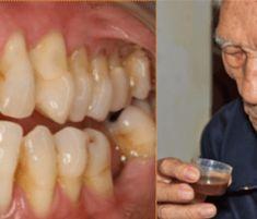 Takto sa zbavíte zubného kameňa a začínajúcich kazov bez drahých procedúr. - TopNaZdravie.sk Health, Natural Treatments, Natural Remedies, Dental, Recipes, Health Care, Salud