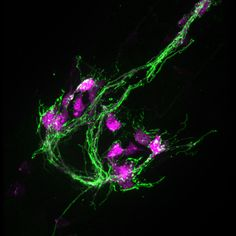 Neurones. diamidinophenylindolee: Neurons from a worm shown, with nerve fibers in green and cell bodies in red. Credit: University of Utah.