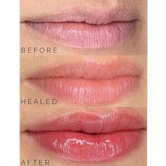 Lip Blush — Laurel Lip Color Tattoo, Lip Permanent Makeup, Lip Plumping Balm, Lip Shapes, Cosmetic Tattoo, Lip Injections, Skin Clinic, Dark Lips, Lip Fillers